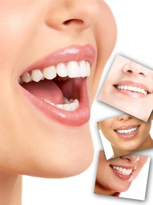 Smile, healthy teeth (the images)